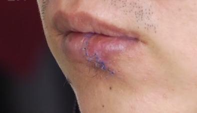 广州:宵夜喝醉起冲突 男子被咬掉下嘴唇
