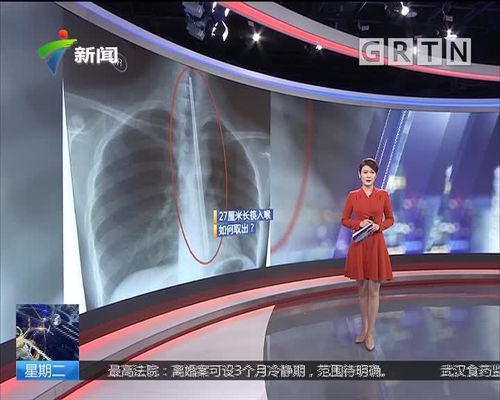江苏连云港:用筷子压喉催吐 意外滑入食道