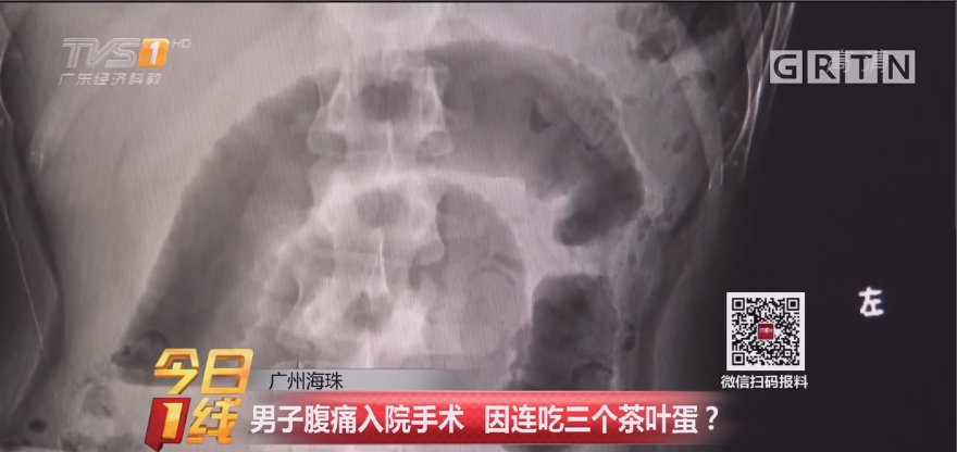 广州海珠:男子腹痛入院手术 因连吃三个茶叶蛋?