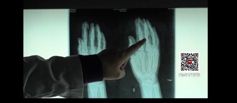 燃放爆竹注意安全:放爆竹被炸断三根手指 紧急手术接指