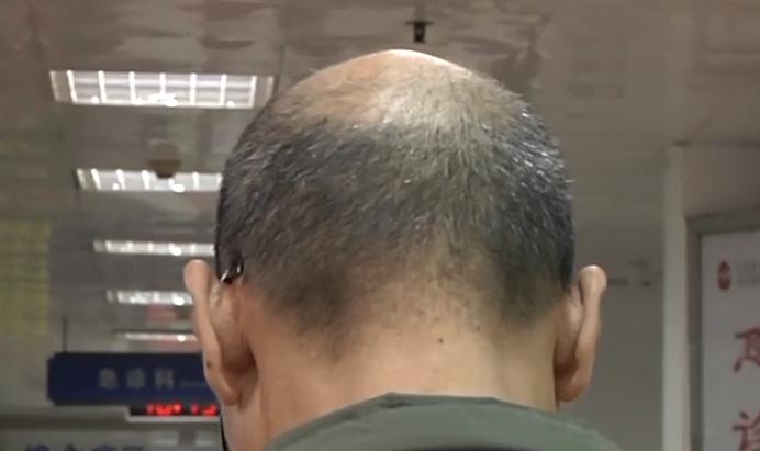 中国男性脱发率达20% 如何预防