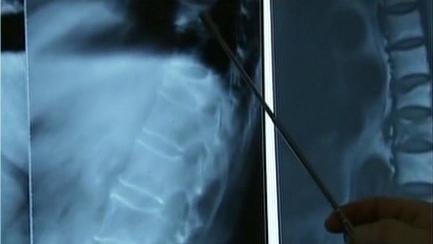 安全生活:骨质疏松如何早发现 严重的骨质疏松容易导致骨折