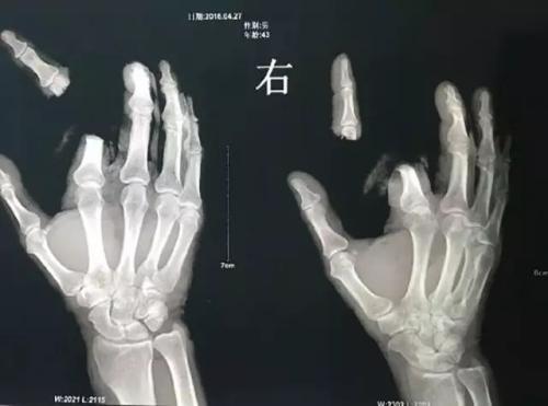 廣州:男子身中蛇毒 竟揮刀斷指求自保