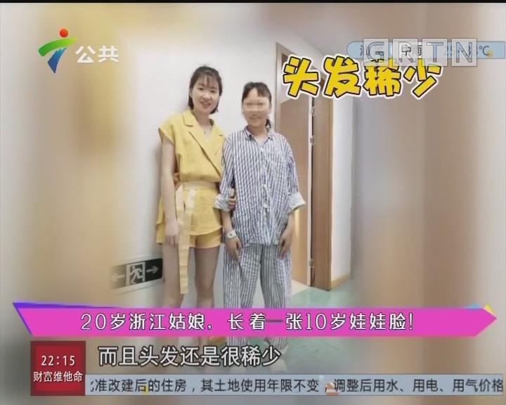健康有料:20岁浙江姑娘,长着一张10岁娃娃脸!