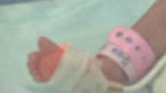 妈妈从不产检 女婴出生竟内脏外露