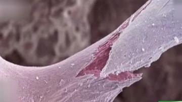 严重的骨质疏松容易导致骨折