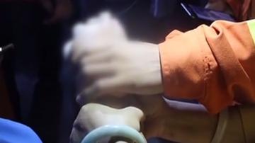 [2019-09-04]城事特搜:飞来横祸!女子手指被钢丝截断