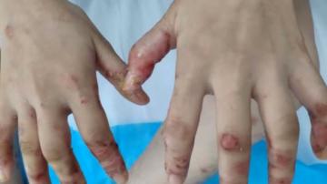 (DV现场)江门:女子手脚长满疱疹 竟是吃鱼太多所致