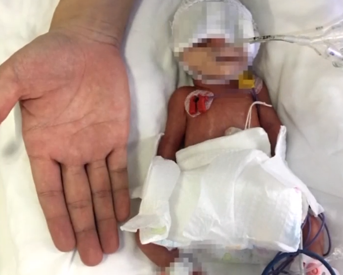 汕头:超早产3胞胎出生不足两斤 多科室救治
