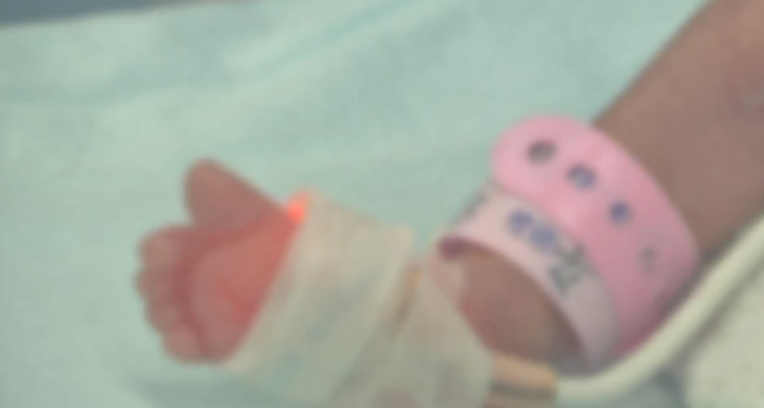 佛山:妈妈从不产检 女婴出生内脏外露