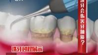洗牙会伤害牙釉质?