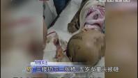 三楼扔下一张椅 五岁女童头被砸
