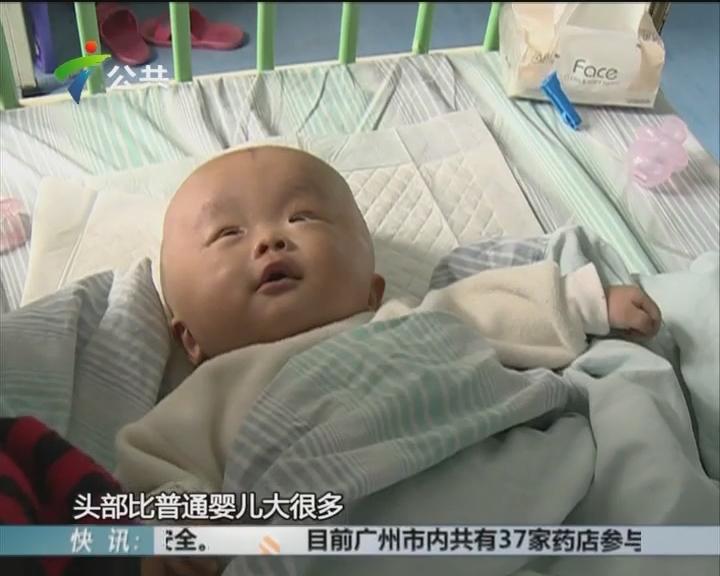爱心档案:河源大头男婴 罹患恶性肿瘤