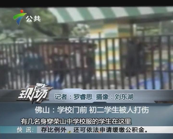 佛山:学校门前 初二学生被人打伤