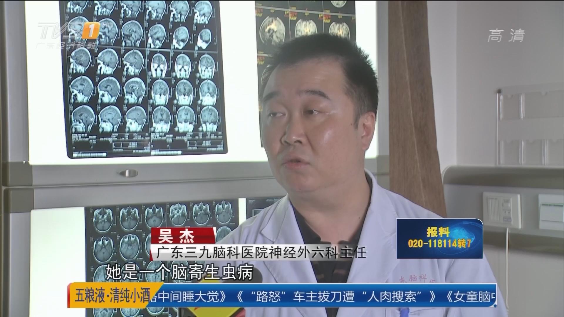 江门:女童脑中取出13厘米寄生虫