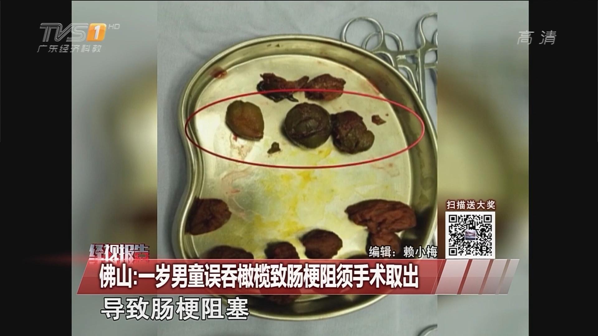 佛山:一岁男童误吞橄榄致肠梗阻须手术取出