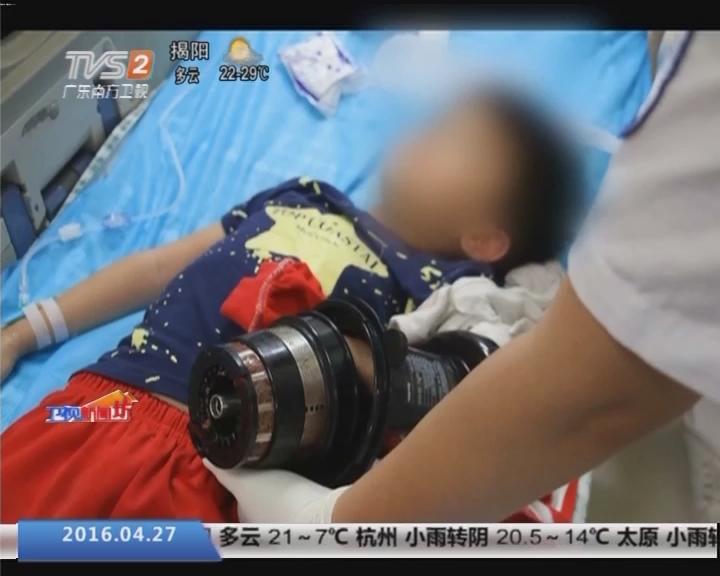 """中山:男童手掌被榨汁机""""咬住"""" 消防来解救"""
