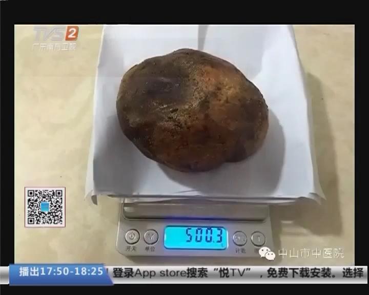 """中山:男子膀胱取出""""巨无霸""""结石 大如鸵鸟蛋"""