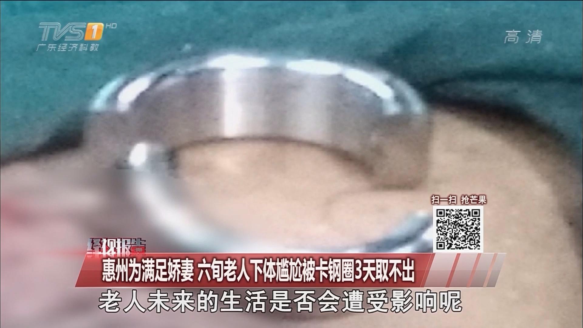 惠州:为满足娇妻 六旬老人下体尴尬被卡钢圈3天取不出