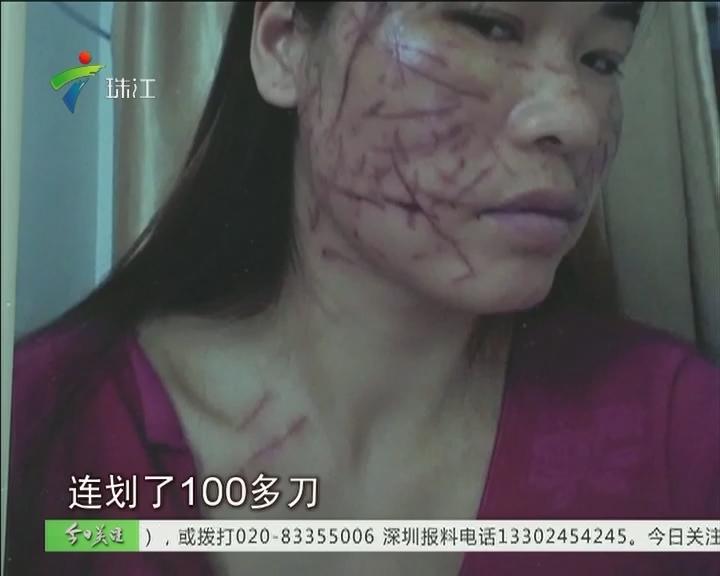 """被""""小三""""在脸上划近百刀 毁容妈妈赴穗修复"""