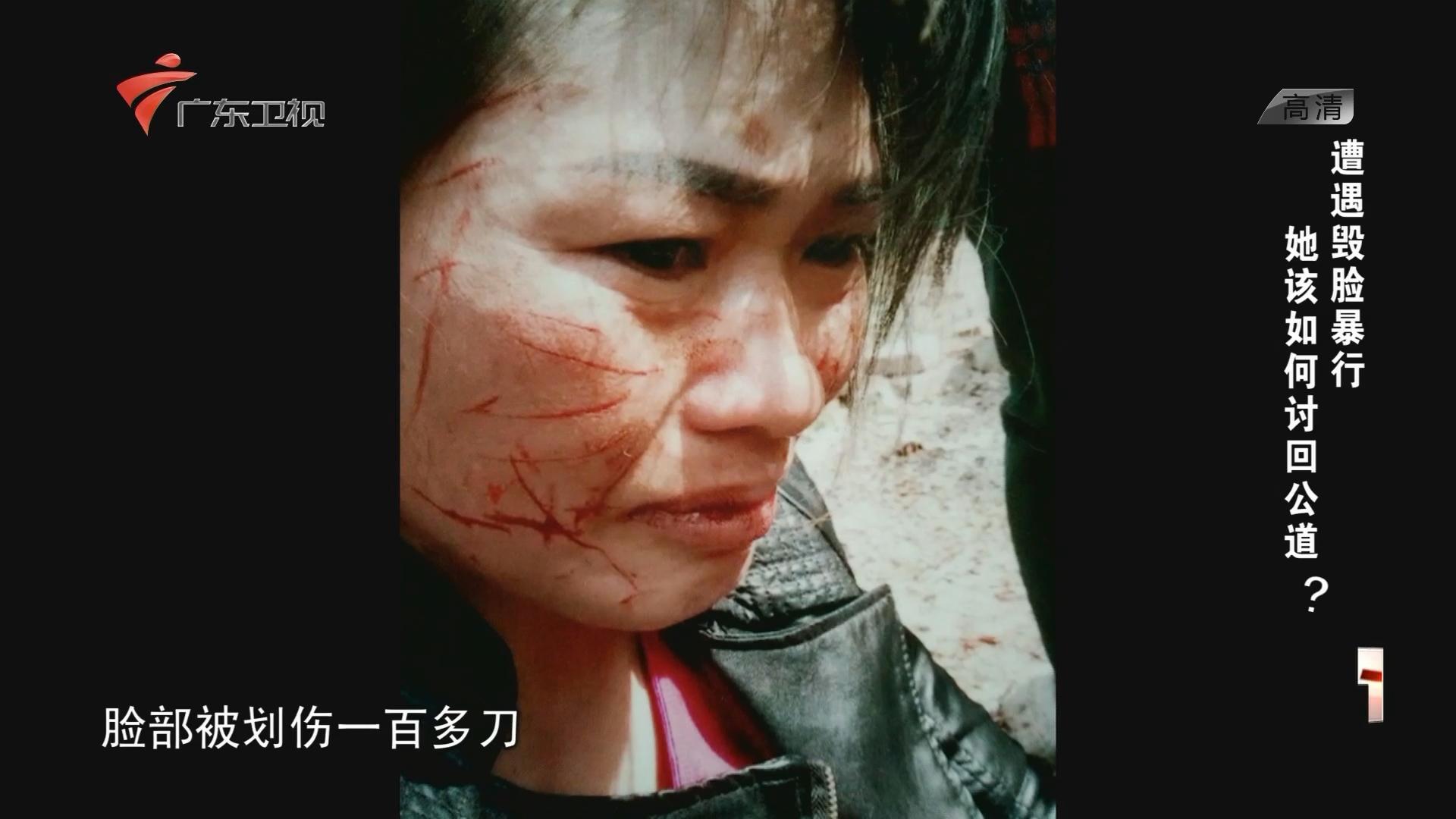 遭遇毁脸暴行 她该如何讨回公道?