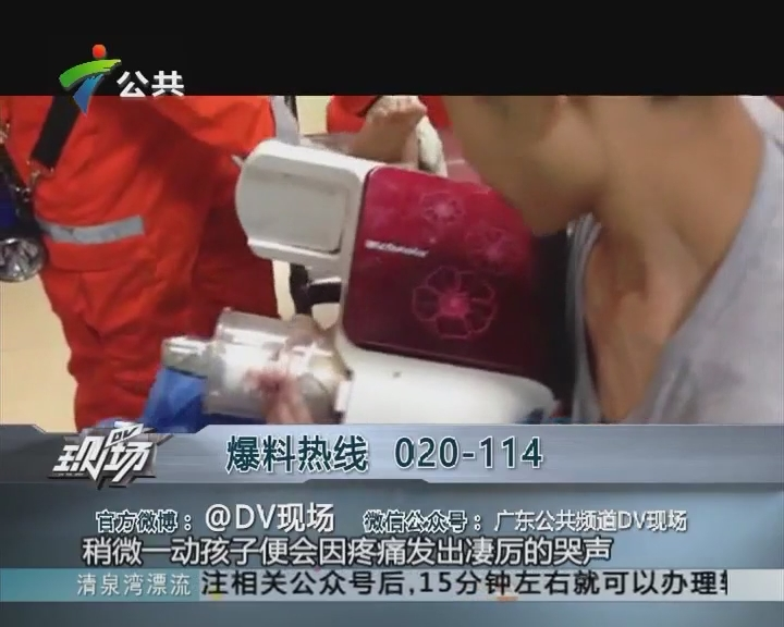 2岁男童效仿父亲榨汁 手指被卡榨汁机