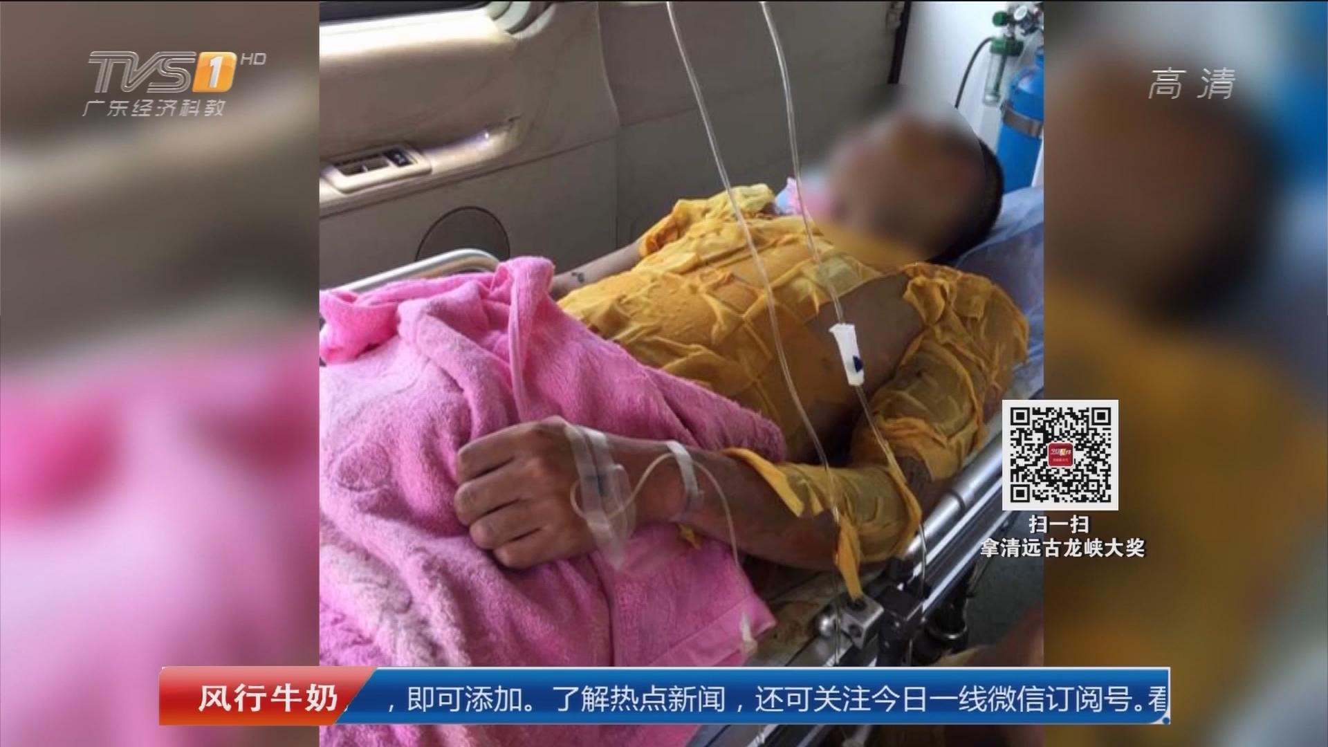 汕头潮南:村干部劝拆违 六人被泼酸灼伤