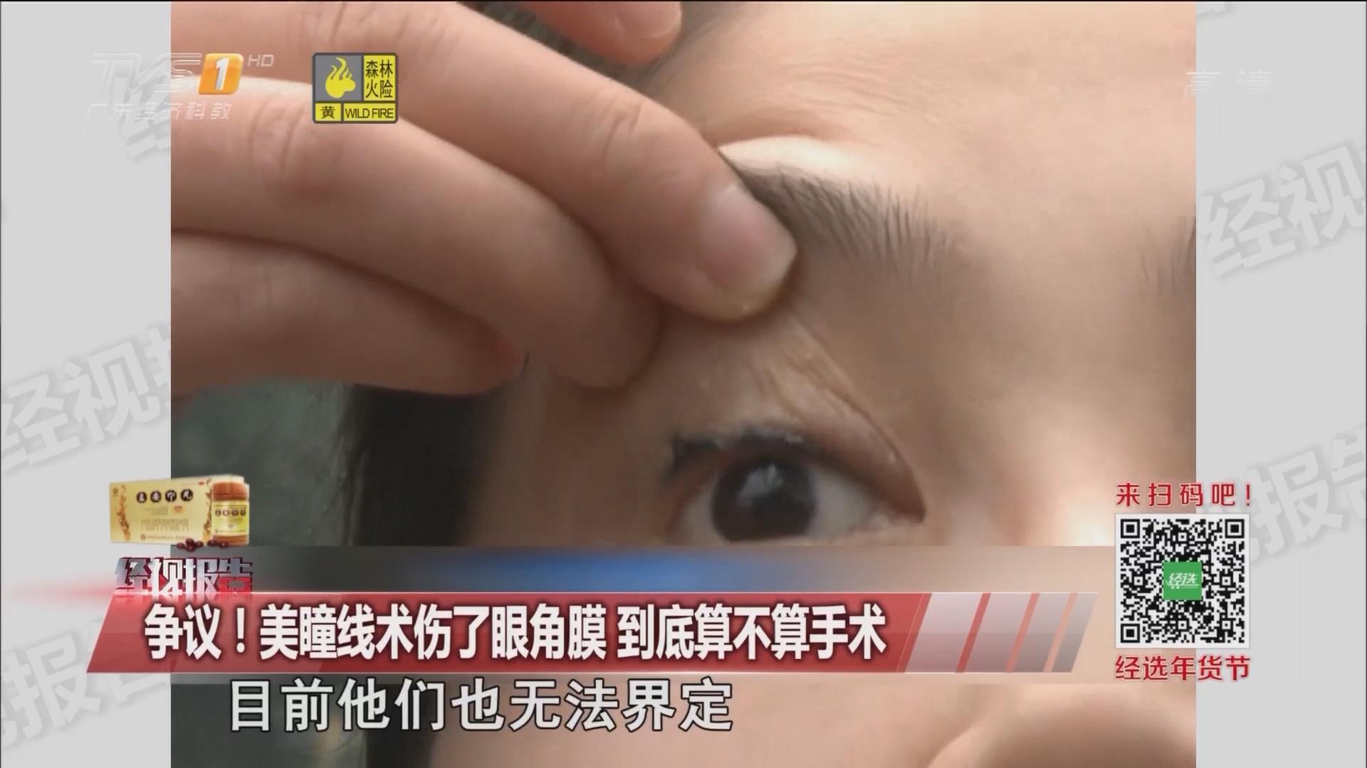 争议!美瞳线术伤了眼角膜 到底算不算手术