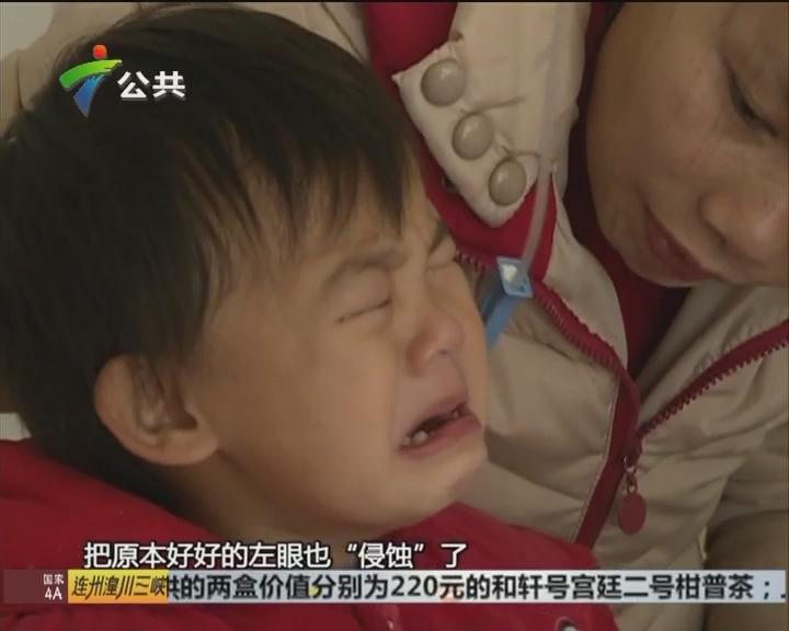 """韶关:2岁女童双目失明 苦盼""""重见光明"""""""