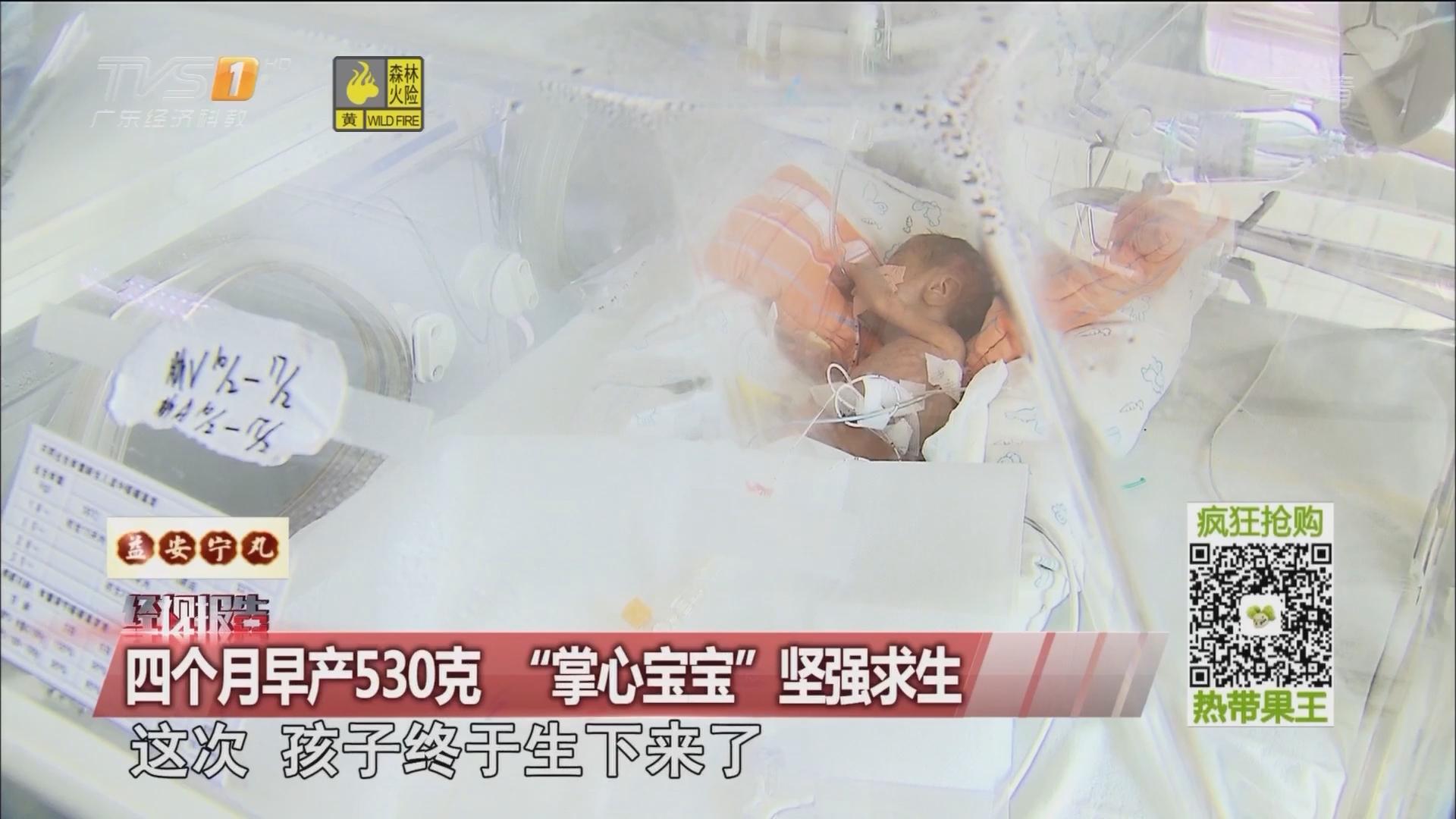 """四个月早产530克 """"掌心宝宝""""坚强求生"""