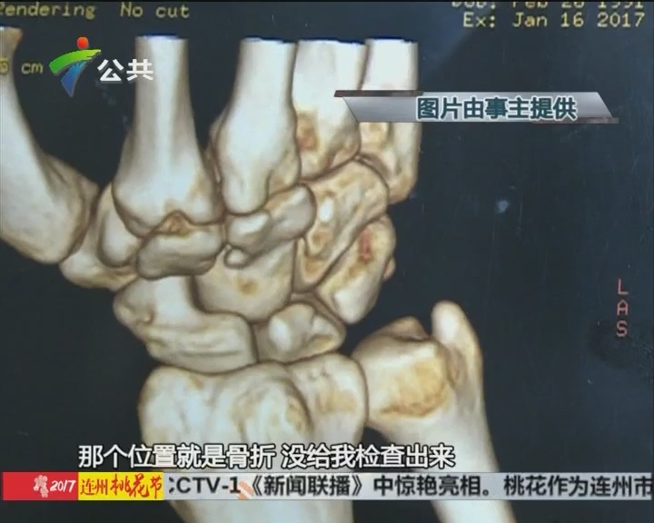 厨师求助:右手骨折被误诊 恐成残疾