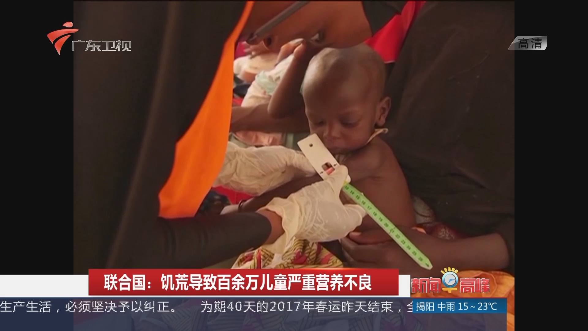 联合国:饥荒导致百余万儿童严重营养不良