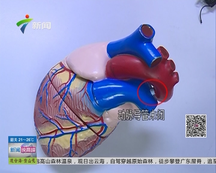 """梅州:早产儿仅重2斤9两 患有""""动脉导管未闭"""""""
