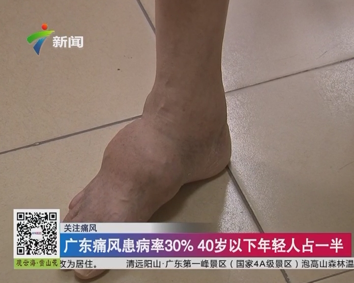 关注痛风:广东痛风患病率30% 40岁以下年轻人占一半