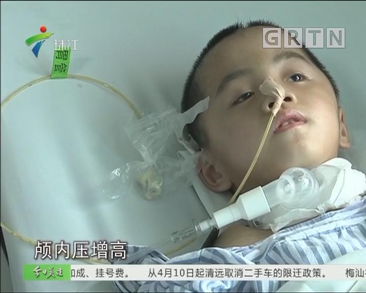 肇庆:六岁娃从一米高猪圈摔下 昏迷不醒