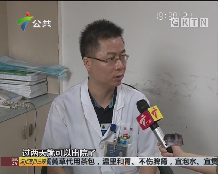 """中山:69岁婆婆输尿管取出""""巨型""""结石"""