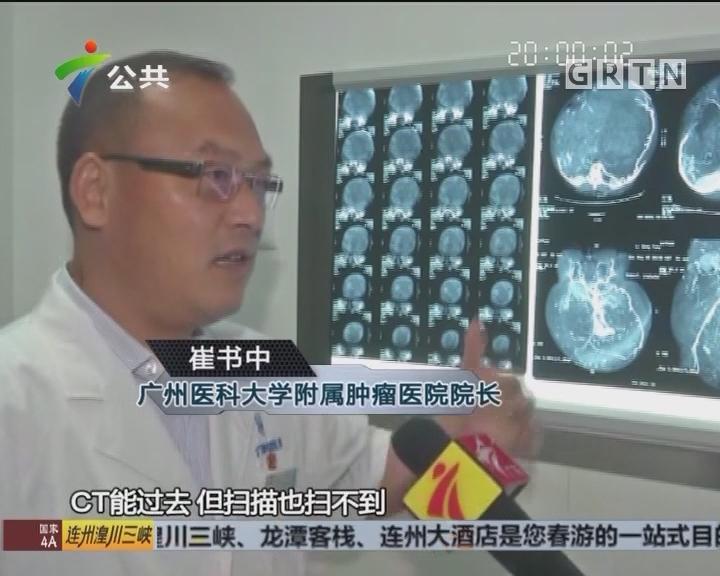 """追踪:""""大肚""""李清凤手术顺利 腹部肿瘤已被取出"""