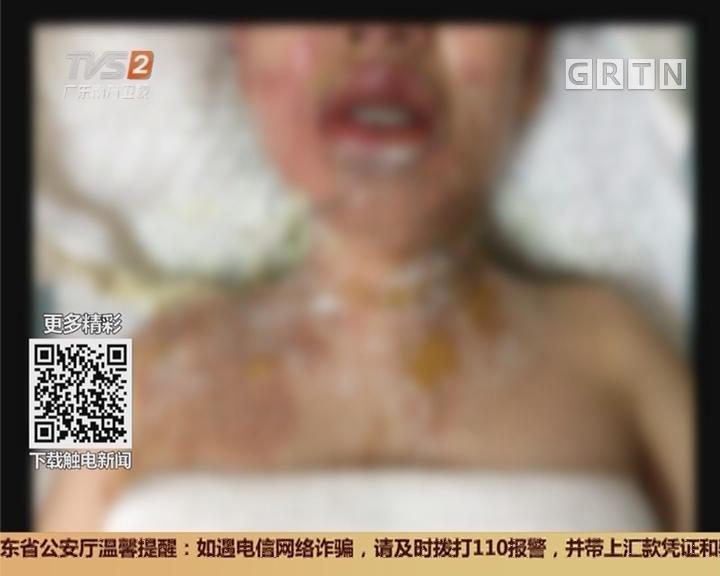 佛山南海:拔火罐被烧身 颈背胸二级烧伤