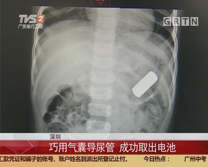 深圳:2岁男童误吞电池 多科室医生救治