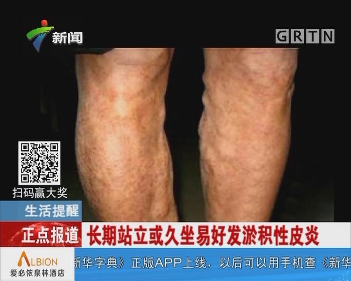 生活提醒:长期站立或久坐易好发淤积性皮炎