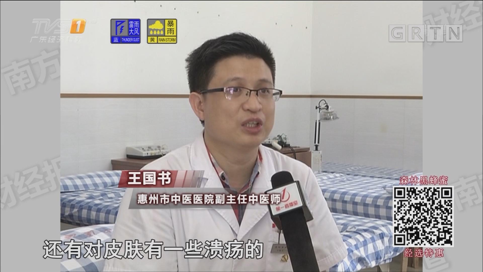 惠州:网购也能天灸?医生提醒需慎重