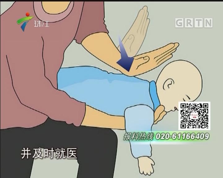 惠州:小鸡骨卡喉 婴儿咳嗽一月