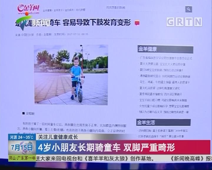 关注儿童健康成长:4岁小朋友长期骑童车 双脚严重畸形