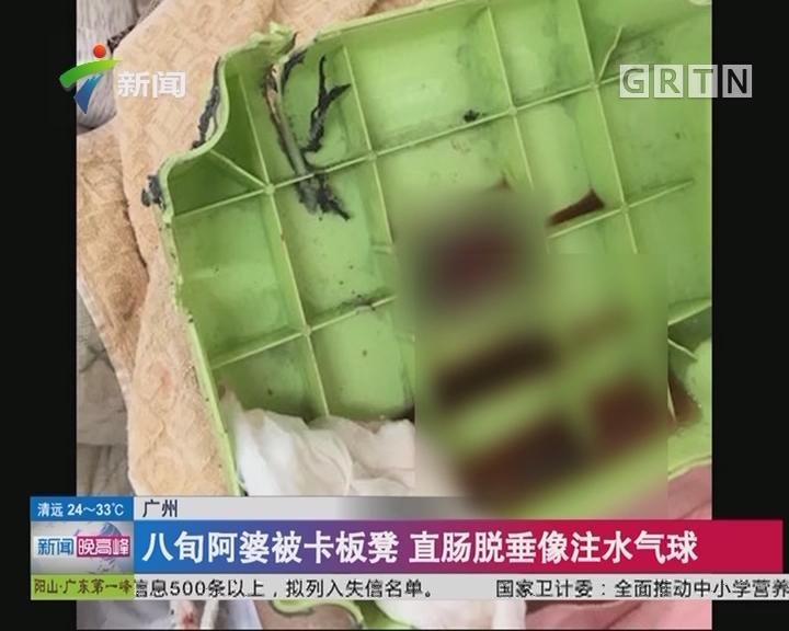 广州:八旬阿婆被卡板凳 直肠脱垂像注水气球