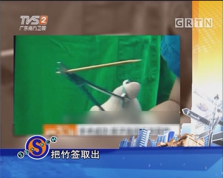 一岁女孩被竹签插喉咙