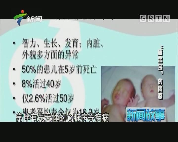 """[2017-07-01]新闻故事:""""唐宝宝""""的困惑"""