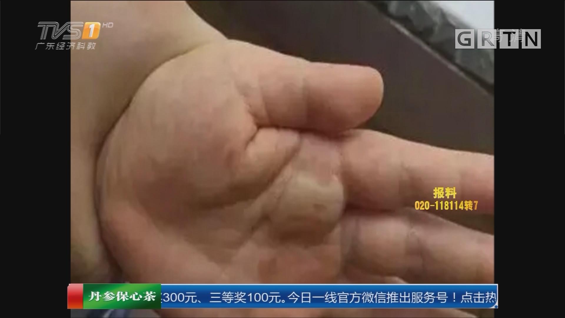 """江门:一跤摔成""""严重烫伤"""" 危险的高温天"""
