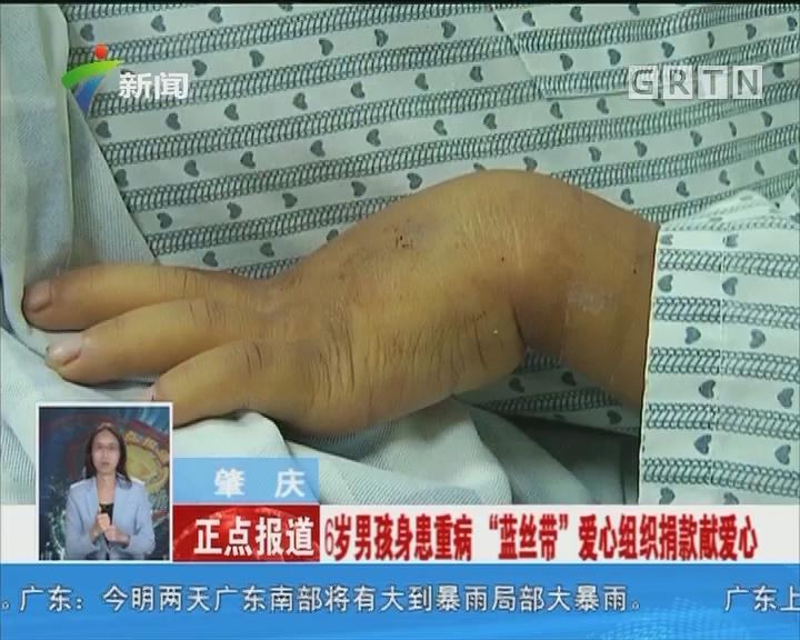 """肇庆:6岁男孩身患重病 """"蓝丝带""""爱心组织捐款献爱心"""