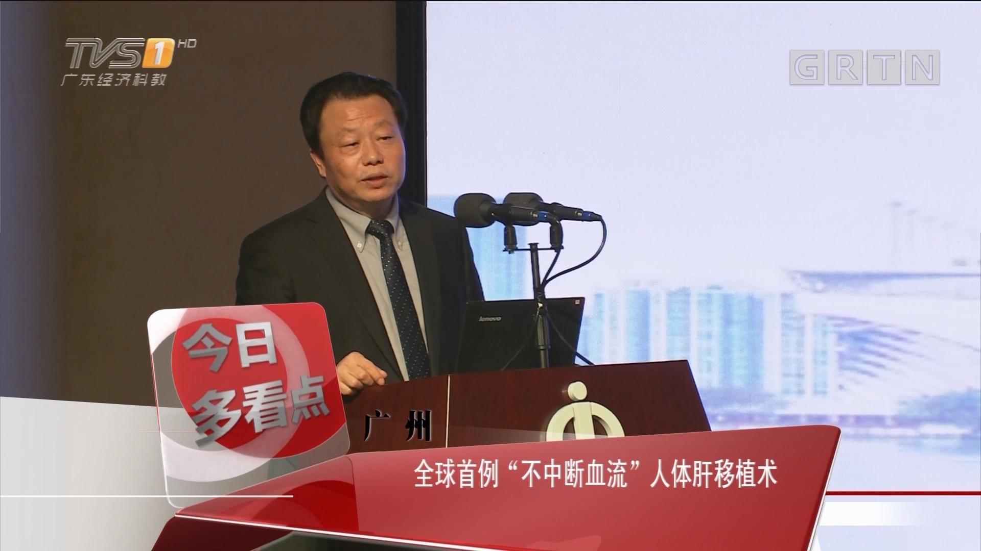 """广州:全球首例""""不中断血流""""人体肝移植术"""