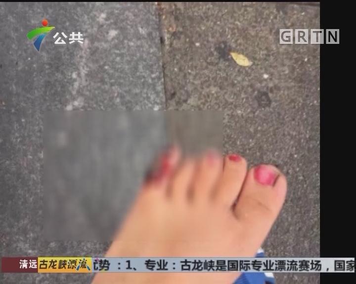 广州:小童脚趾夹入电梯 至脚趾骨折
